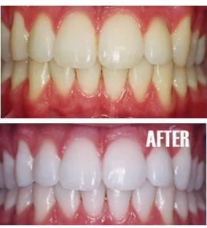 professional-teeth-whitening_clip_image002